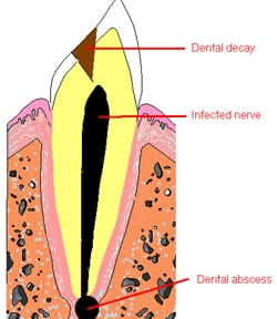 rootcanal2_250